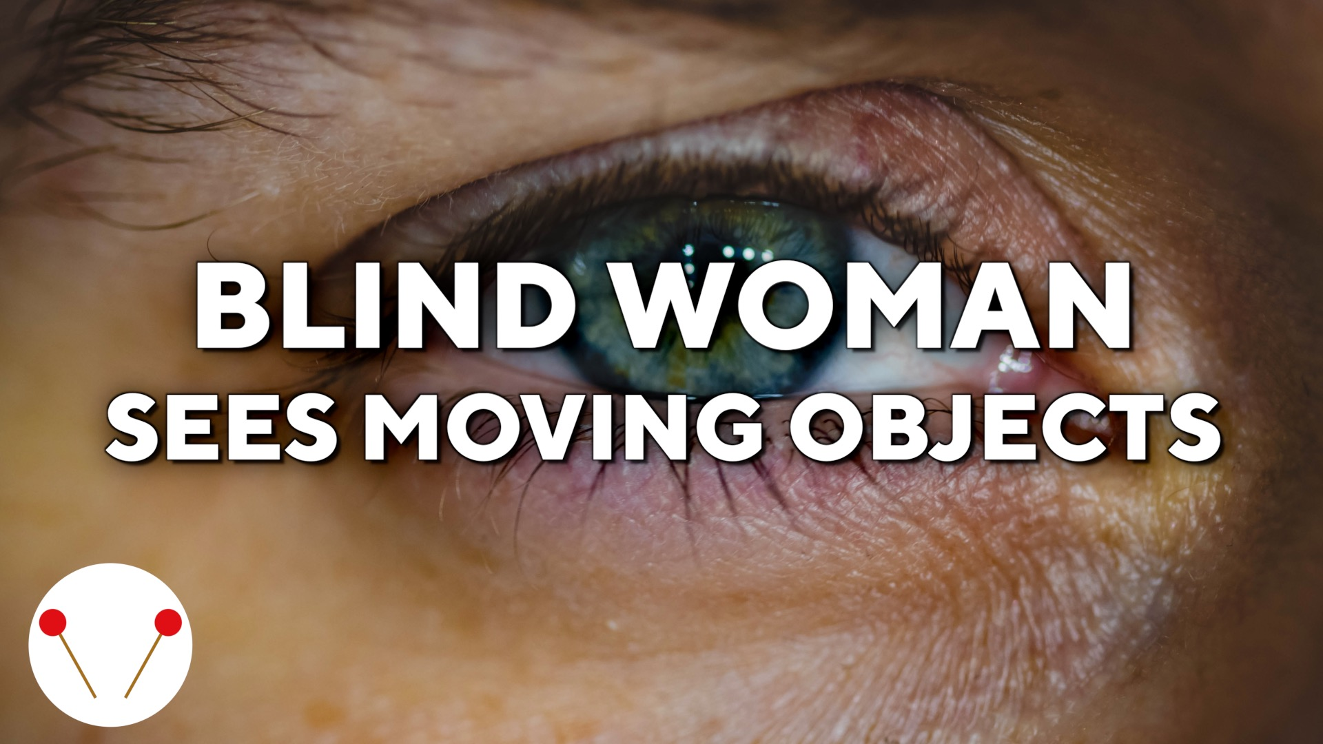 This blind woman can see moving objects